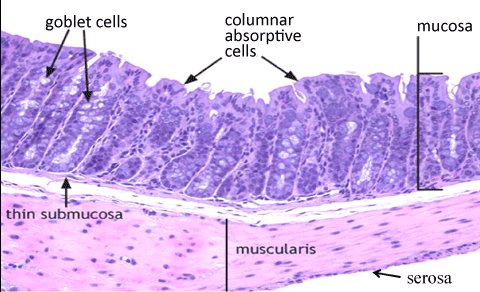 Colon - Pathoma